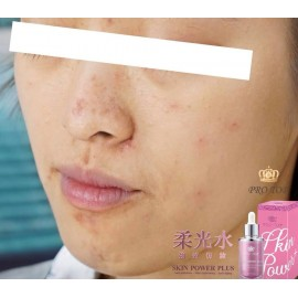 Protop Skin Power 柔光水 30ml (裸妝肌 / 修復歲月痕跡 / 細緻回彈嫩白肌 / 抗衰老 )