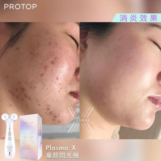 Protop PLasmax 超級等離子機 緊緻/祛皺/拉皮/美白/祛暗瘡